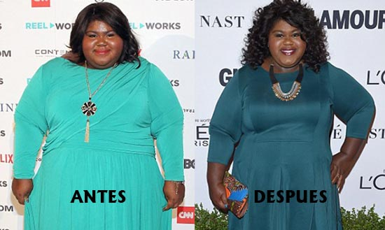 GaboureySidibe weightloossurgery
